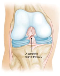 Anterior cruciate ligament - Sudihir Rao