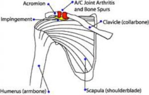 AC joint arthritis - Sudihir Rao