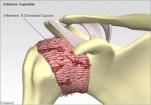 Adhesive capsulitis - Sudihir Rao