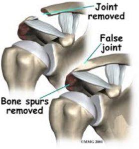Arthroscopic joint excision - Sudihir Rao