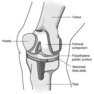 Knee Replacement Sudhir Rao Knee Hip And Shoulder Surgeon