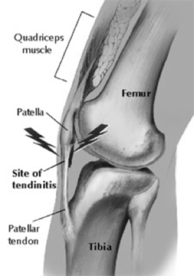Patella tend