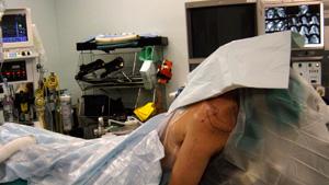 Shoulder procedure